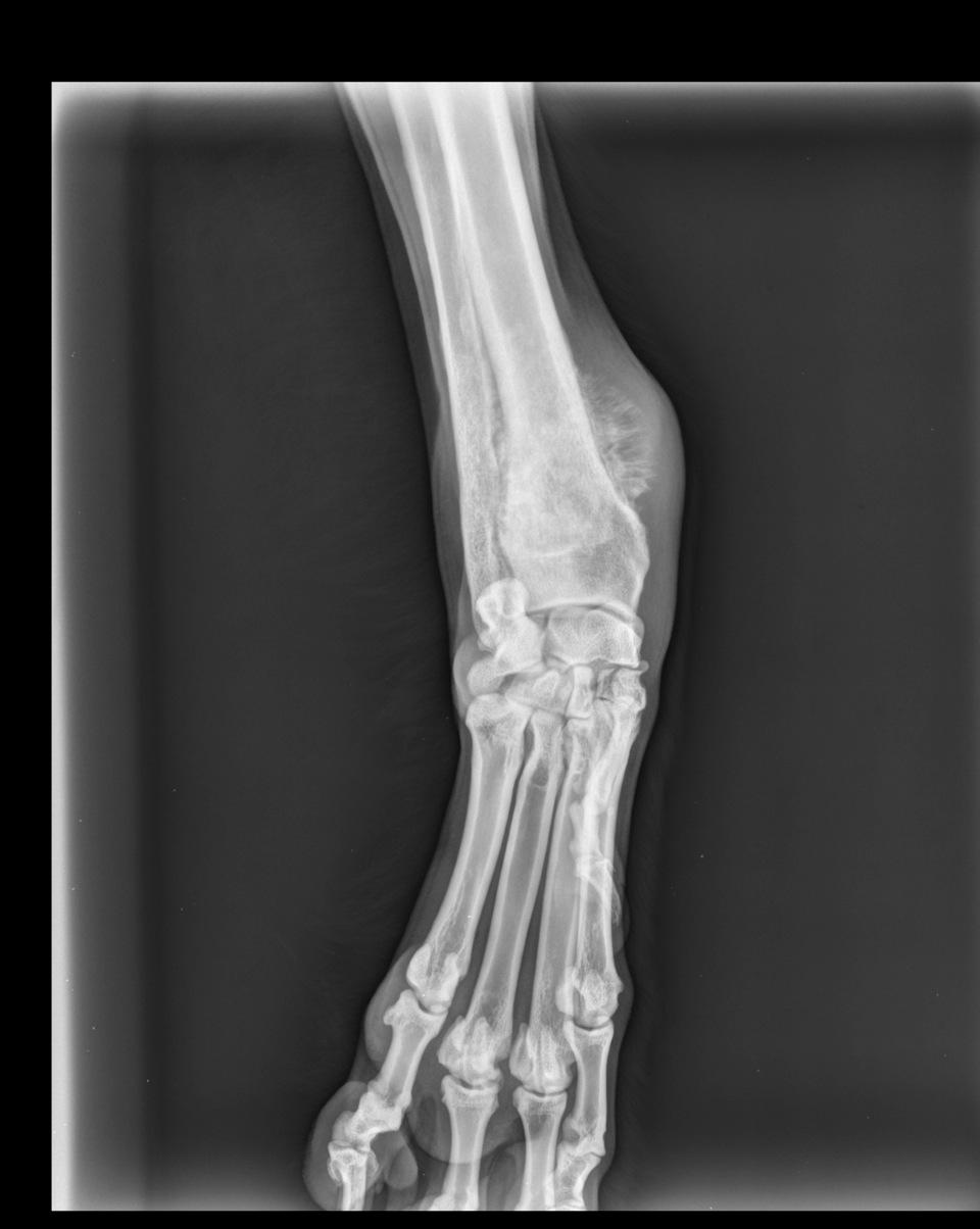 Röntgenbild Osteosarkom